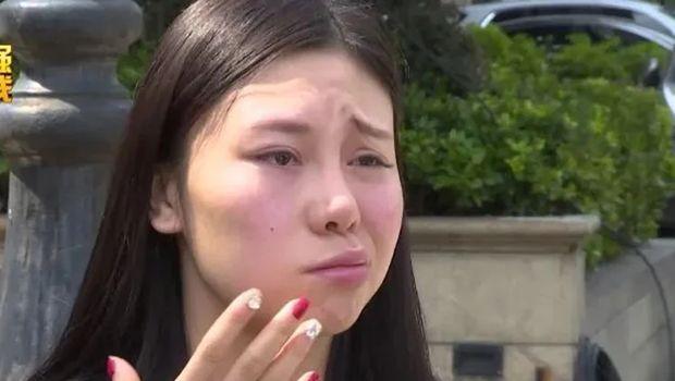 Wanita di China lumpuh sebelah di wajah setelah suntik filler.