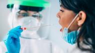 Tes PCR Rp 900 Ribu, Satgas IDI: Harusnya Gratis Dibayar Pemerintah