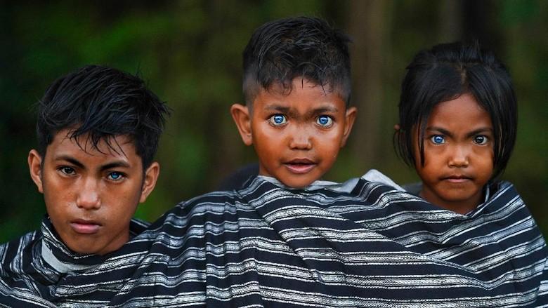 Anak-anak dari Suku Buton dan Muna, Sawal, Fardan, Ditra (dari kiri ke kanan) memiliki mata biru karena Sindrom Waardenburg