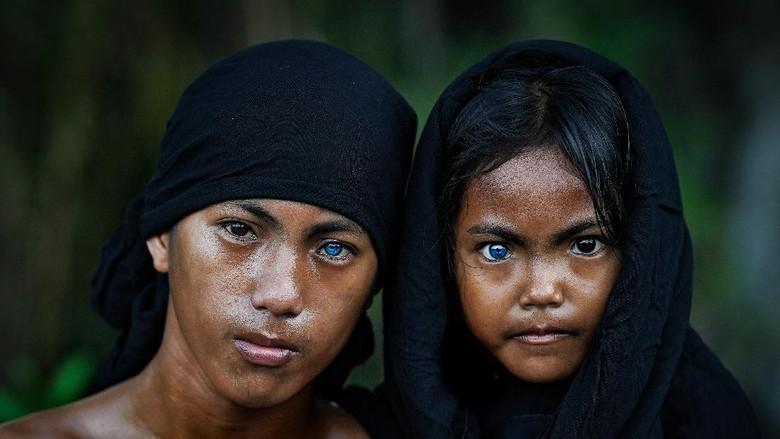 Sawal dan Ditra dari Suku Muna dan Suku Buton yang emmiliki mata berwarna biru.