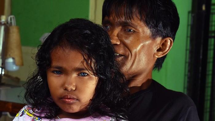 Zulbahri dan Zizy (putrinya) bermata biru.