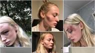 Kisah Model Hampir Mati Dipukuli Pacar, Awalnya Merasa Dia Sosok Sempurna