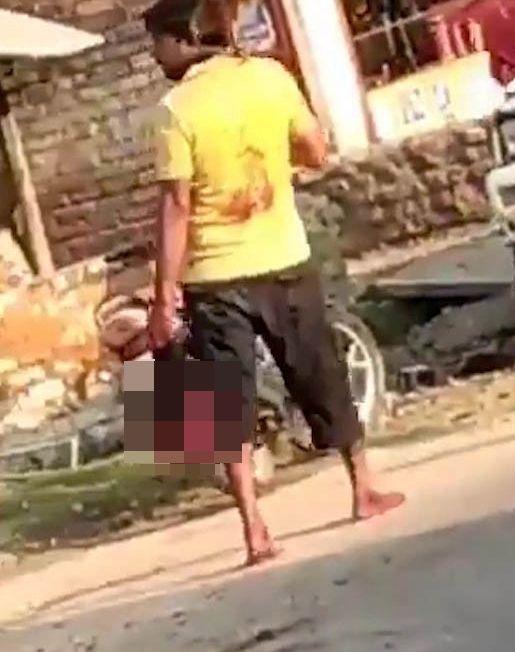 Pria India Mutilasi Kepala Istri yang Selingkuh