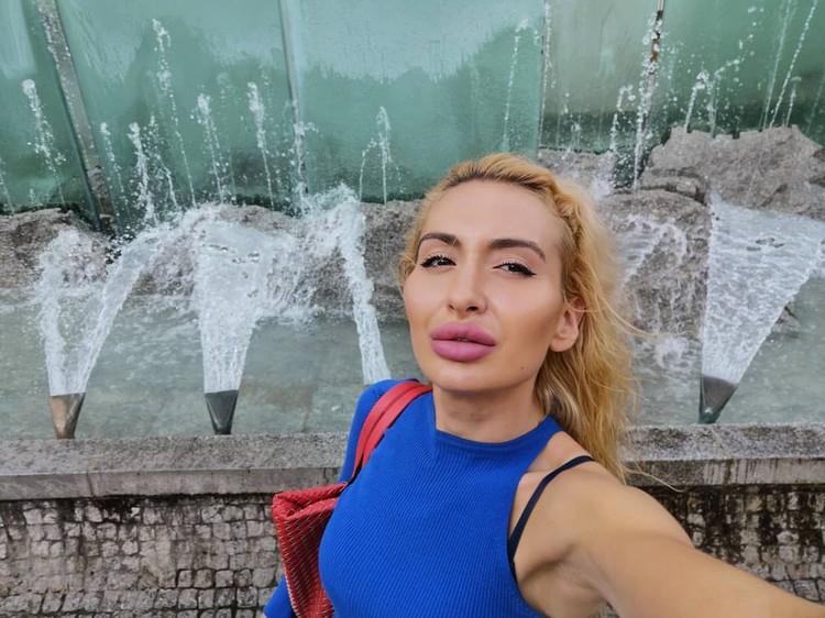 Model Instagram dengan Pipi Paling Besar di Dunia.