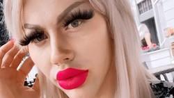 Foto: Penampilan Pria Tulen yang Kecanduan Filler Agar Mirip Barbie