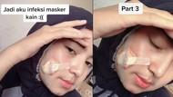 Viral Kisah Wanita Berjerawat Karena Masker Kain, Akhirnya Sampai Dioperasi