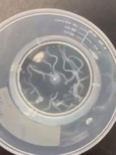 Cacing yang ditemukan oleh dokter di mata seorang kakek.