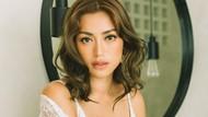 Profil Jessica Iskandar, Sempat Didiagnosa Grave Disease Sejak Pertengahan 2020