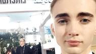 Pria Ini Habiskan Rp 1 M untuk Oplas, Implan Bisep Hingga Tanam Rambut