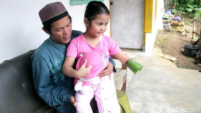 Bocah perempuan di Sukabumi  butuh tangan palsu