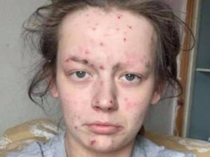 Viral, Before-After Wanita Mantan Pecandu Narkoba yang Bikin Pangling