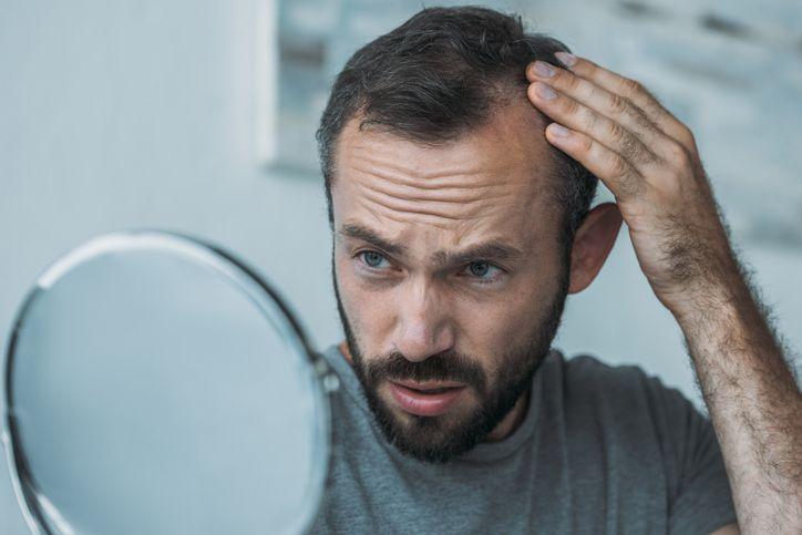 Kopi untuk Atasi Rambut Rontok Pada Pria