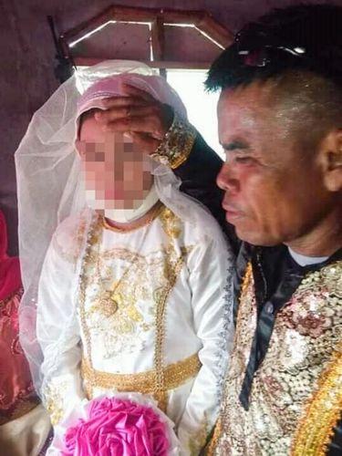 Pernikahan anak di Filipina.
