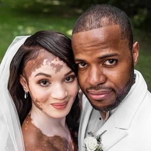 Wanita dengan Vitiligo Sulit Dapat Pacar, Berakhir Dilamar Pria Sejati