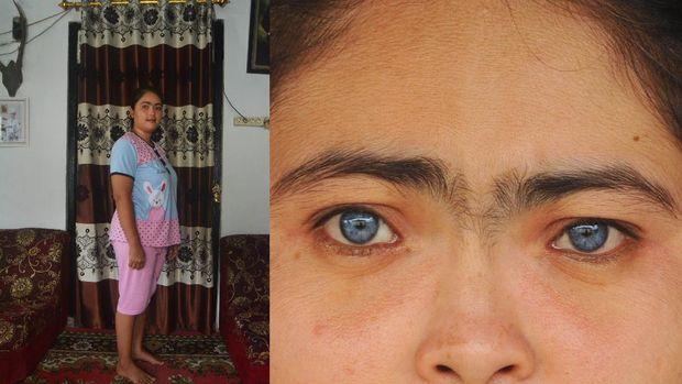 Restu Ayu (29) berpose di rumahnya, di Jorong Dalam Koto, Nagari Taeh Baruah, Kecamatan Payakumbuh, Kabupaten Limapuluhkota, Sumatera Barat, Rabu (21/10/2020). Restu Ayu yang merupakan seorang ibu rumah tangga itu memiliki dua iris mata bewarna biru yang kemudian ia turunkan ke anak keduanya.