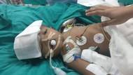 Kembar Siam Dempet Kepala Meninggal 3 Tahun Usai Operasi Pemisahan