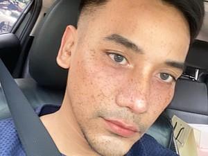 Alasan Bubah Alfian Pakai Filter Instagram Setelah Operasi Plastik Hidung