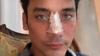 Perjalanan MUA Bubah Alfian Operasi Hidung, Tulang Hidung Sempat Keropos