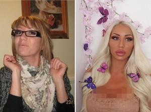 Wanita Berubah Total dengan Operasi Plastik, Penampilannya Dulu Beda Banget