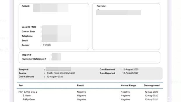 Hasil Tes PCR Swab COVID-19