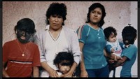 20 Anak Tumbuh Rambut di Seluruh Tubuh Gegara Salah Minum Obat