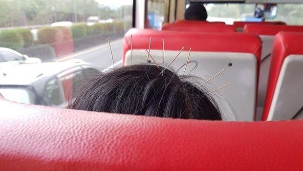 Foto viral wanita yang menaiki bis dengan 9 jarum akupunktur di kepalanya.