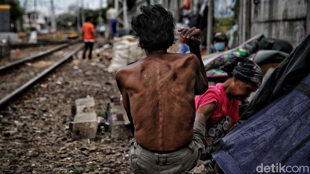 2 Fakta Penting soal Penduduk Miskin Tembus 27,55 Juta Orang