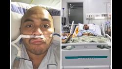 Kisah Viral 11 Hari di ICU, Kena COVID-19 Meski Rajin Olahraga