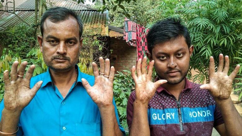 Kisah keluarga tanpa sidik jari, kondisi genetik langka yang membuat mereka sulit masuk ke negara lain