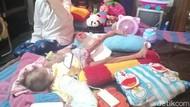 Kasihan, Tangan Bocah 5 Tahun di Madiun Ini Membesar Karena Kanker Tulang