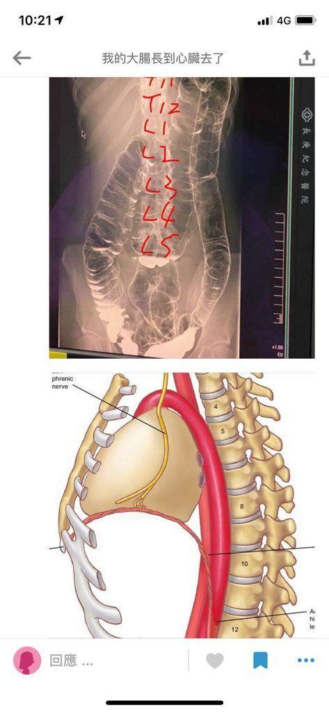 Hasil rontgen usus wanita yang sering mengalami sembelit.