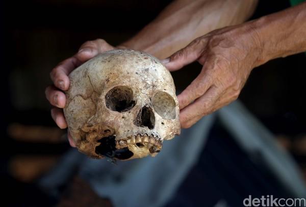 Inilah salah satu tengkorang salah satu raja di Suku Dayak Taman dengan bergigi emas.