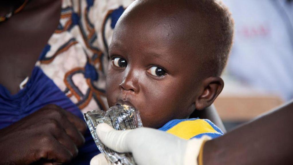 COVID-19 di Negara Konflik Picu Malnutrisi Anak-anak
