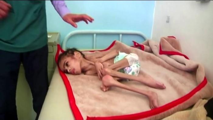 Bocah 7 tahun di Yaman hanya miliki berat 7 kg (Screen shot video Reuters)