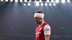 Premier League Bakal Uji Coba Pergantian Pemain Gegar Otak