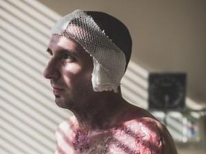 Pria Ini Kesetrum, Kulitnya Meleleh Sampai Kelihatan Tulangnya