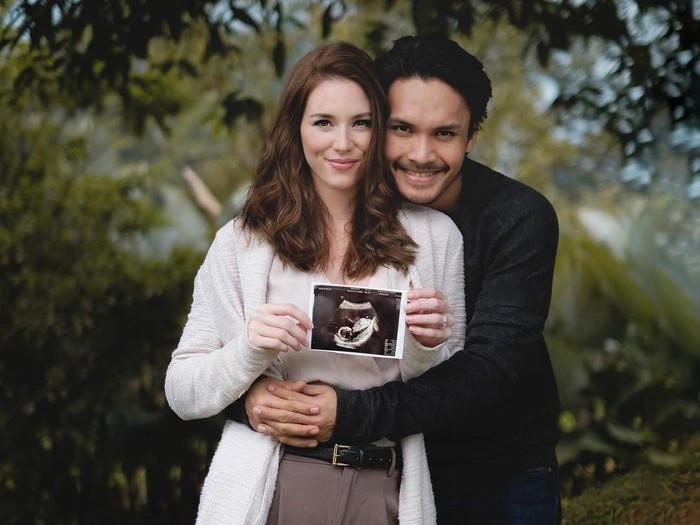 Kehamilan Chelsey ini sebelumnya dikabarkan oleh Rendy melalui Instagram pribadinya pada Oktober 2020 lalu. (Foto: Instagram @randpunk)