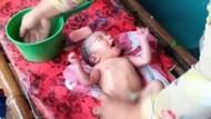 Bayi Terbungkus Daun Pare Ditemukan di Ladang Tebu Pasuruan
