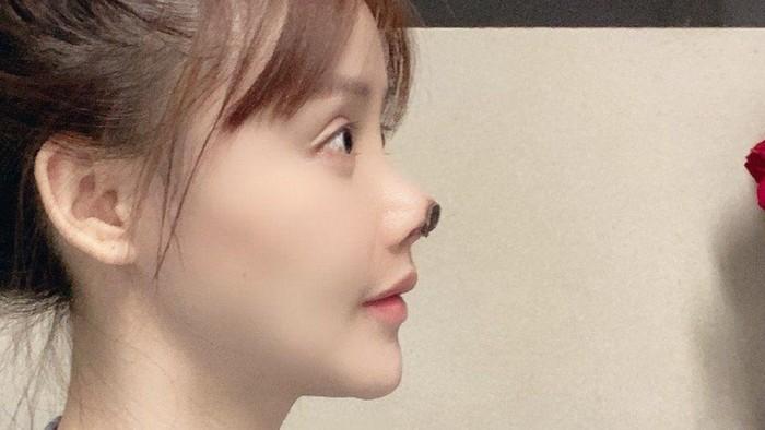 Aktris asal China yang mengalami nekrosis hidung karena operasi plastik.