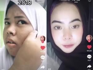 Viral Remaja Glow Up Dalam 2 Tahun, Wajah Jerawat Jadi Mulus Bikin Penasaran