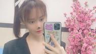 Hidung Artis China Gao Liu Membusuk Sampai Menghitam karena Oplas Gagal