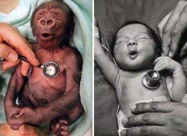 Ekspresi gorila dan bayi saat ditempelin stetoskop. Gemas!
