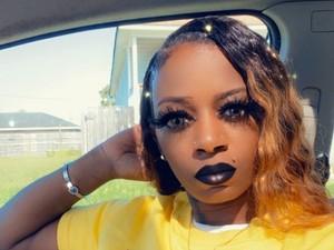 Wanita yang Viral karena Pakai Lem di Rambut Akhirnya Harus Operasi Plastik