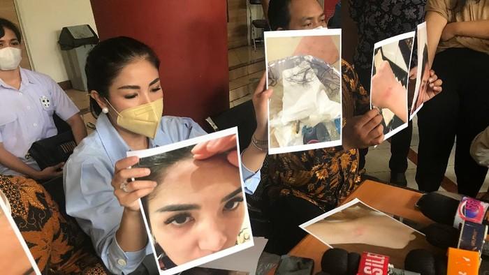 Nindy Ayunda datangi Komnas Perempuan, tunjukan bukti KDRT
