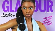 Kisah Wanita Berbulu Dada Lebat, Sempat Insecure Hingga Ingin Bunuh Diri
