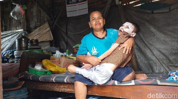 viral anak lumpuh tinggal di rumah tak layak huni