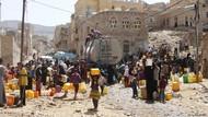 Potret Menyedihkan Konflik Yaman: RS Kewalahan Tampung Anak Malnutrisi