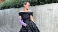 Tangan Cedera, Artis Ini Jadi Viral Pakai Gips Mewah dari Prada