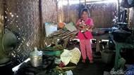 Nafisa, Bocah yang Ingin Operasi Luka Bakar Agar Tak Terus Diejek Teman