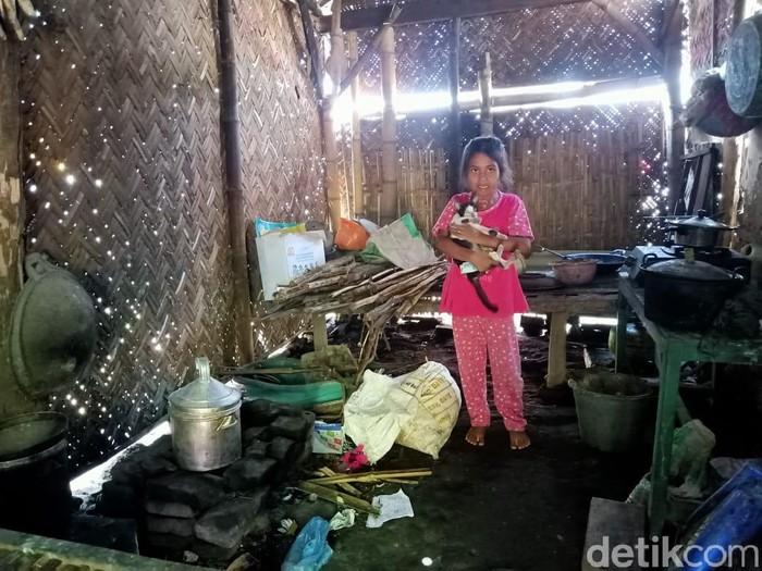 Nafisa (7) mengungkapkan kegelisahannya. Warga Dusun Blobo, Desa Banjar Sari, Kecamatan Sumberasih, Kabupaten Probolinggo ini mengaku tengah membutuhkan uluran tangan.